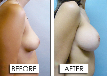 breast-augmen